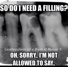 "(More like a root canal pbu/Pfm) ""Dr. will come in to look at the X-ray and he'll let you know"" lol"