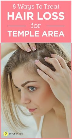 Hair loss at temples area is a common issue that many men and even women are facing today. Owing to factors like stressful lifestyles and pollution, people are beginning to lose hair at their temples as early as in their Here are some useful tips Temple Hair Loss, Oil For Hair Loss, Hair Loss Remedies, Hair Thickening Remedies, Thinning Hair Remedies, Natural Hair Growth Remedies, Cold Remedies, Health Remedies, Prevent Hair Loss