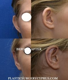Surgery of the Face - Plastic Surgery Clinic in Cyprus (Limassol-Nicosia)