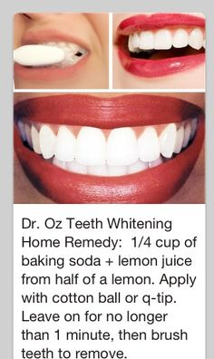 Beauty Tip / DIY Face Masks 2017 / 2018 Dr. Oz teeth whitening tip. It didn't leave my teeth glaringly white, but I didn't expect that. It did whiten them pretty noticeably after one go, though. -Read More – Teeth Whitening Remedies, Natural Teeth Whitening, Whitening Kit, Skin Whitening, Crest Whitening, Instant Teeth Whitening, Homemade Teeth Whitening, White Teeth Tips, Teeth Care