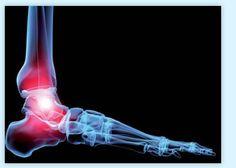 Arkopharma Chondro-Aid - Le Cartilage Articulaire : L'Arthrose