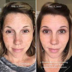 Want products that WORK? Then you need to take the Rodan+Fields 60 day challenge! If you are not completely satisfied with your results then simply return the empty bottles and get a full refund...easy peasy!