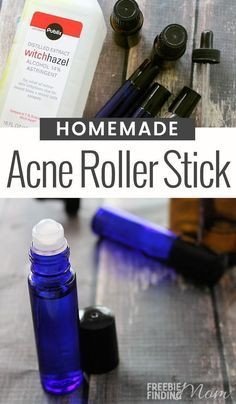 Do you suffer from acne? This all-natural Homemade Acne Stick can zap zits quickly and easily. All you need is witch hazel, frankincense essential oil and melaleuca (tea tree) essential oil. These ingredients in this emergency zit stick have Essential Oils Pimples, Essential Oils For Skin, Tea Tree Essential Oil, Essential Oil Blends, Essential Oils For Vertigo, Frankincense Essential Oil Uses, Doterra Acne, Melaleuca, Acne Oil