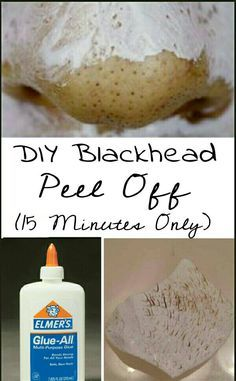 Watch This Video Effective Natural Remedies To Remove Blackheads Ideas. Irresistible Natural Remedies To Remove Blackheads Ideas. Face Scrub Homemade, Homemade Face Masks, Homemade Skin Care, Diy Skin Care, Skin Care Routine For 20s, Natural Cold Remedies, Herbal Remedies, Get Rid Of Blackheads, Tips Belleza