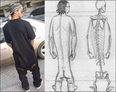 Baggy pants anatomy revealed!