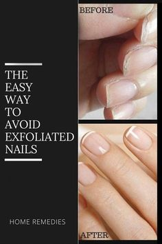 Home Tips To Avoid Exfoliated Nails Lack of vitamin A Argan Oil For Hair Loss, Best Hair Loss Shampoo, Biotin For Hair Loss, Biotin Hair, Hair Shampoo, Baby Hair Loss, Hair Loss Cure, Hair Loss Remedies, Normal Hair Loss