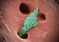 Kupffer cells are cells of the immune system that patrol the liver to recycle old red blood cells and degrade pathogens. Here, Kupffer cells are moving within small blood vessels lined with holes that allow the cells to enter the liver at sites of damage or inflammation.    Image by Tom Deernick.