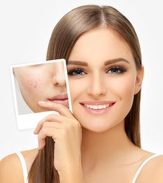 Are you looking the best #Specialist for the #Acne_Scar_Removal? So #Charming_Skin & Vein clinics are one of the best clinics for those people who are suffering from the darker spots on the #Skin in Des Plaines. To get more details please contact us at (630)974-1400 or click away.