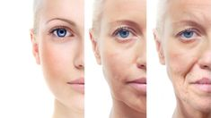 7 Effective Home remedies for Sagging Skin. 7 Effective Home remedies for Sagging Skin. Individuals get the initial introduction of you through the looks all over. Your identity is very reliant on the looks all over. A hanging skin will clearly bring dow Anti Aging Treatments, Facial Treatment, Aloe Vera Creme, Dieta Detox, Dermal Fillers, Loose Skin, Sagging Skin, Natural Home Remedies, Skin Care Products