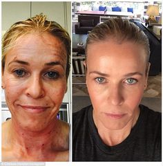 'Its f***ing awesome and no one is paying me to tell you about it. Bam!' Chelsea Handler shared an incredible before/after selfie following a ProFractional laser treatment on her face