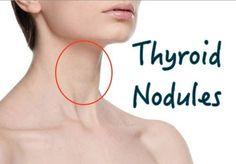 All-Natural Remedies for Thyroid Cystic Nodules Thyroid Nodule Symptoms, Symptoms Of Thyroid Problems, Thyroid Nodules, Thyroid Imbalance, Underactive Thyroid, Thyroid Issues, Thyroid Cancer, Thyroid Disease, Thyroid Health