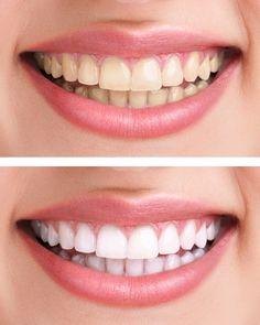 Stained yellow teeth??? Try these simple home remedies.... पीले दांत? छुटकारा पाएं इन 8 घरेलू नुस्खों से