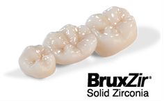 If you liked our post on #Emax crowns, check out or latest blog on #BruxZir restorations! #ThousandOaksDentist