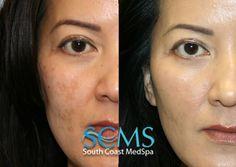 South Coast MedSpa Laser Acne Scar Removal how to get rid of acne scars Laser For Acne Scars, Laser Acne Scar Removal, Adult Acne Treatments, Pimple Scars, Scar Treatment, Acne Breakout, How To Get Rid Of Acne, Acne Skin, Skin Care