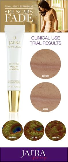 Looking for the perfect solution to any blemish on your skin? We have it, our Royal Jelly Scar Balm