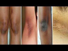 Cómo eliminar las manchas oscuras de las axilas, rodillas, codos, entrepierna y cuello - YouTube