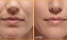 Yoga face workouts can erase mouth wrinkles and trim smile folds very effectively. Utilizing face toning exercises to decrease laughter wri. Bio Cosmetics, Beauty Secrets, Beauty Hacks, Beauty Tips, Skin Care Tips, Skin Care Regimen, Personal Beauty Routine, Wrinkle Remedies, Magical Makeup