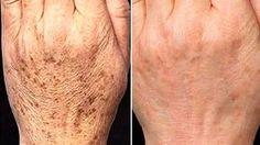 Tengo 60 años y pude eliminar más del 90% las manchas y arrugas de mis manos, rostro y cuello aplicando este remedio casero. Si quieres ver resultados prueba esta crema natural y mira cómo te va a la semana de usarla ¡Todos te pedirán la formula!