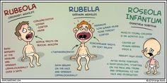 Rubeola, Rubella, Roseola