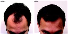 Hair Restoration treatment for grow hairs. Get hairs full of head. Check out hair treatment. hair transplant in ludhiana