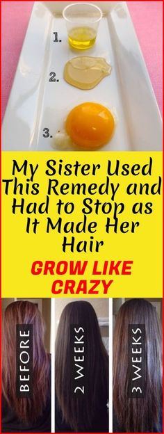 Hair Remedies My Sister Used This Remedy And Had To Stop as it Made Her Hair Grow Like Crazy! Help Hair Grow, How To Grow Your Hair Faster, How To Make Hair, Grow Hair Back, How To Grow Natural Hair, Hair Remedies For Growth, Hair Loss Remedies, Hair Growing Remedies, Hair Growing Mask