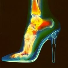 What high heels do to your feet