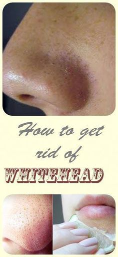 How to get rid of whiteheads - Beauty of the Skin Foot Warts, Warts On Hands, Warts On Face, Home Remedies For Warts, Natural Cough Remedies, Pimples Remedies, Herbal Remedies, Get Rid Of Warts, Remove Warts