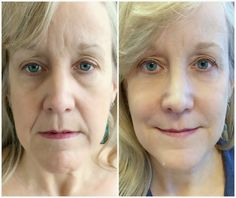 Liquid facelift in Austin. 10 Year Younger in 10 Days with Belotero, Radiesse, Xeomin and photofacial!