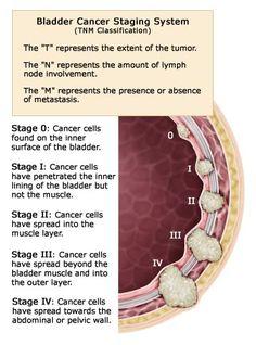bladder cancer stages