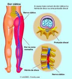 dor lombar e cãibras nas pernas à noite um sinal clássico