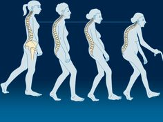 Τα οστά είναι ζωντανοί ιστοί που ανανεώνονται διαρκώς και αντικαθίστανται Ant Crafts, Alternative Medicine, Health Fitness, Arthritis, Baby, Beautiful, Newborns, Health And Fitness, Infant