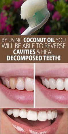 Coconut Oil Uses - By Using Coconut Oil You Will Be Able To Reverse Cavities And Heal Decomposed Teeth! 9 Reasons to Use Coconut Oil Daily Coconut Oil Will Set You Free — and Improve Your Health!Coconut Oil Fuels Your Metabolism! Cooking With Coconut Oil, Coconut Oil Uses, Coconut Oil For Skin, Advantages Of Coconut Oil, Benefits Of Coconut Oil, Leave In, Reverse Cavities, Heal Cavities, Cellulite Scrub