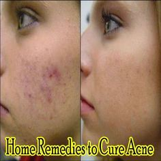 "Here are some traditional home remedies for curing acne ""Amazing all-natural clear skin breakthrough permanently eliminates acne without drugs, creams or over the counters. Stop wasting money on pills, gels, and other worthless quick fix cures… Learn the"