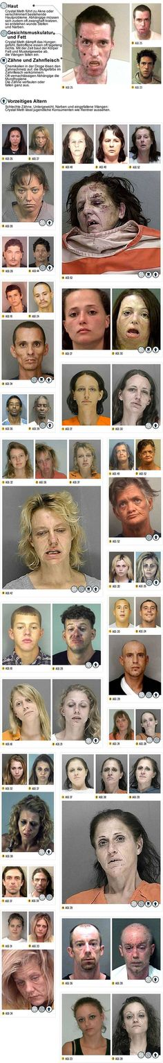 Before and After Drugs (Meth) ; Anti-drug photos to show your teenage kids just yet another reasons why they shouldn't try meth. If you or a loved one is suffering from a drug addiction, please seek help by visiting the website at the bottom of the PSA. Crystal Meth, Health Class, Health Education, Nurse Education, School Health, Addiction Recovery, Sport Fitness, Tennis Elbow, Sick