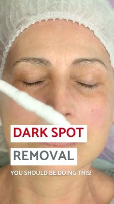 Here's a Great Solution Recommended by Beauty Experts to clear up dark spots, age spots & sun spots. How To Fade, Lighten Dark Spots, Under Eye Wrinkles, Black Skin Care, Skin Spots, Anti Aging Facial, Beauty Products, Lush Products, Face Products