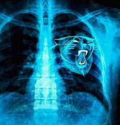 Carolina Panthers: How the hell did my X-Rays get on here? Football Love, Football Fans, Football Season, Football Stuff, Sport Football, Carolina Pride, Carolina Blue, North Carolina, Nc Panthers