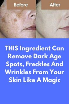 THIS ingredient can remove dark age spots, freckles and wrinkles from your skin like a magic. Sometimes with age dark spots appear on our skin, they might vary in size and usually appear on face,hands and arms. These are known as age spots and very common Age Spots On Face, Spots On Legs, Brown Spots On Face, Dark Spots, Skin Spots, Age Spot Remedies, Natural Remedies, Age Spot Removal, Wrinkled Skin