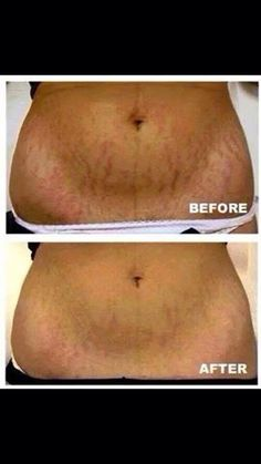 Our stretch mark cream is absolutely fabulous!!!! I've only  had mine for 1 month, still have half the bottle and my marks are vanishing!!!!!!!!!!!!!!!!