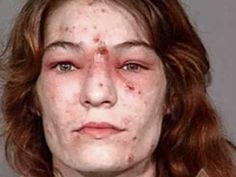 "Warning - Very Disturbing pictures (Crystal Meth    ""Addiction Effects"")"