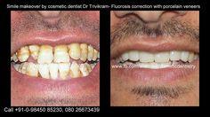 Cosmetic Dentistry Cost, Porcelain Crowns, Porcelain Veneers, Smile Makeover, Dentist In, Good Smile, The Help, Sculpting, Teeth
