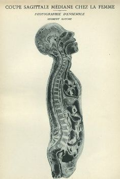 Images from the History of Medicine (NLM) - Search Results: All Fields similar to Medical Photography, Matchbox Art, Danse Macabre, Vintage Medical, Medical Illustration, Human Anatomy, Male Face, Fields, Medicine
