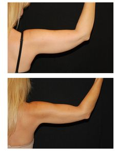 CoolSculpting of the arm.  1 treatment / posterior view.  Results shown 10 weeks post-treatment.  SculptMD ~514.728-5783