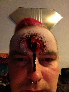 Gun shot wound
