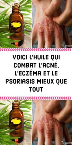 Le Psoriasis, Massage Techniques, Anti Aging Serum, Diy Hairstyles, Glowing Skin, Aloe Vera, Health Tips, Detox, Healthy Lifestyle