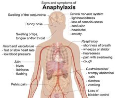 Anaphylaxis/Allergic reaction - signs and symptoms