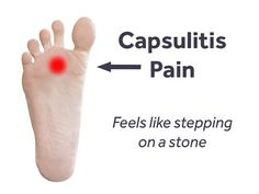 When you mention foot injuries, most people think of Achilles tendonitis, stress fractures or the dreaded plantar fasciitis. Foot Pain Chart, Sore Toe, Morton's Neuroma, Tendon, Stress Fracture, Foot Remedies, Natural Remedies, Foot Pain Relief, Health