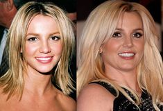 Britney Spears Before & After Plastic Surgery Photos.