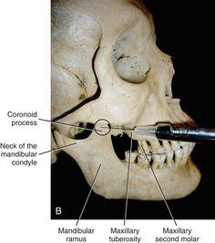 By Margaret J. Fehrenbach and Demetra Logothetis: The Vazirani-Akinosi mandibular block is a viable pain control option Oral Surgery, Dentistry, Dental, Image, Teeth, Dentist Clinic, Tooth, Dental Health