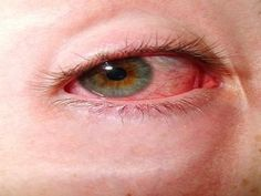 Natural Remedies for Conjunctivitis | Health & Natural Living