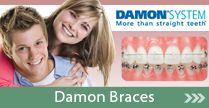 Damon Braces